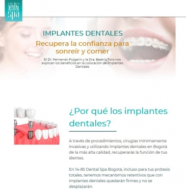 Implantes dentales - 1485 - Dental Spa